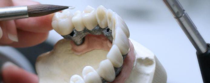Как склеить зубной протез в домашних условиях