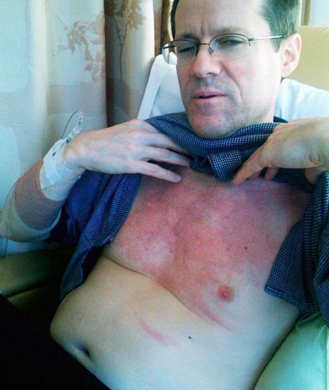макроглобулинемия вальденстрема симптомы прогноз