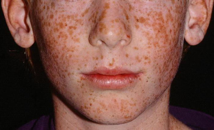Xeroderma pigment treatment