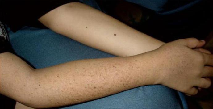 xeroderma pigment symptoms