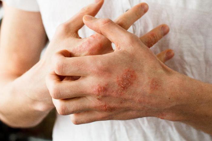 Безгормональное лечение псориаза - лечение без побочных эффектов