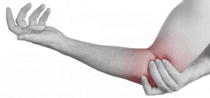Болят суставы, объяснит болит колено после перелома шейки бедра форум