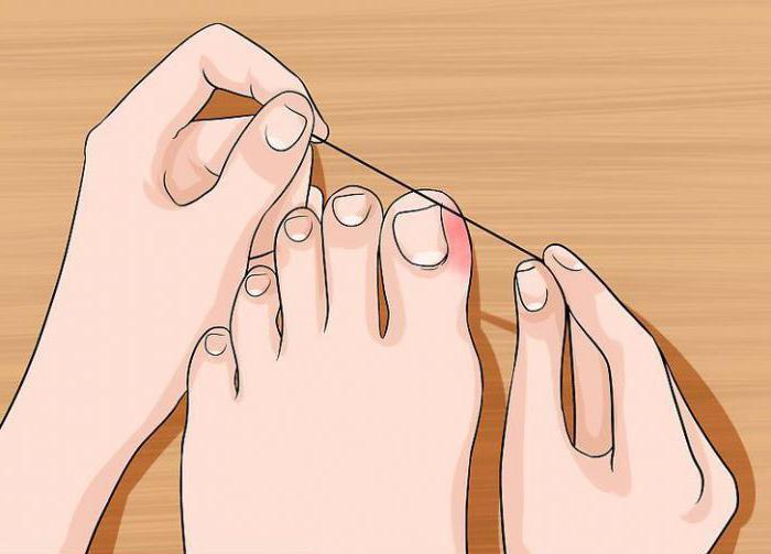 Удаление большого ногтя на ноге
