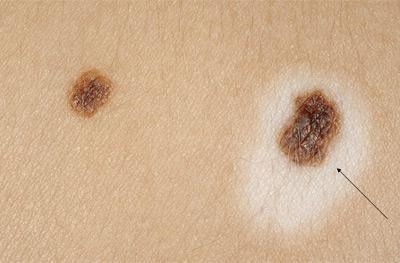 Изменения кожи вокруг родинки: белое пятно