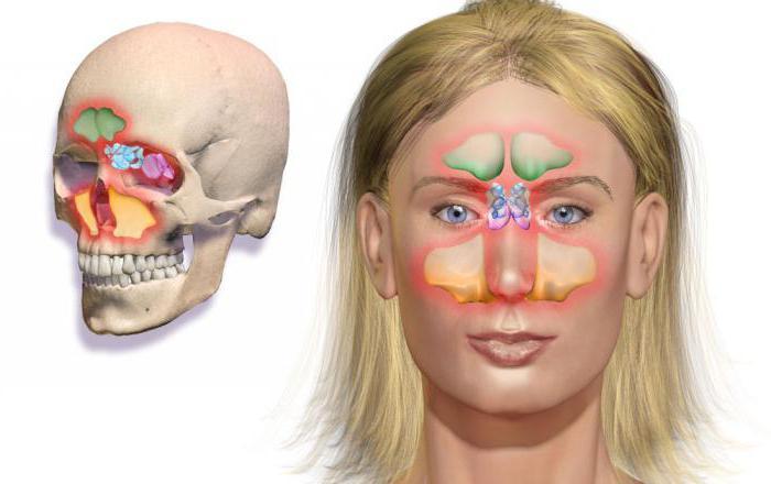 drugs for sinusitis