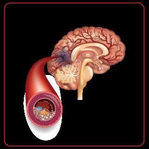 ишемический инсульт головного мозга прогноз