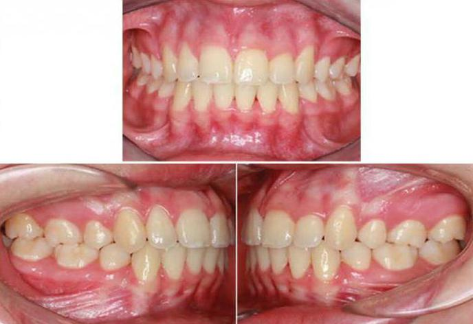 прикусы зубов человека картинки его помощью