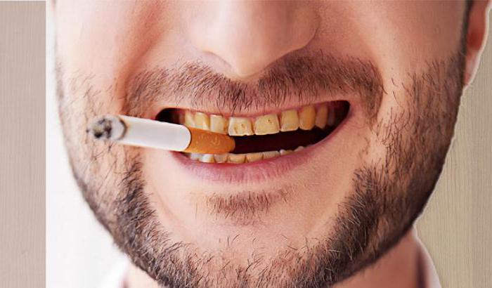 как очистить черный налет на зубах