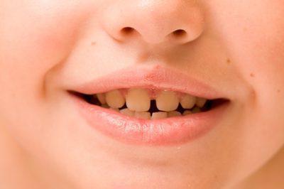 как очистить зубы ребенку от черного налета