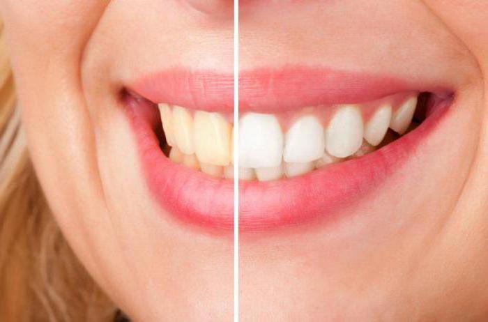 как очистить зубы от желтого налета