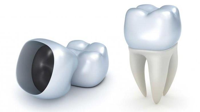мышьяк в зубе сколько можно держать