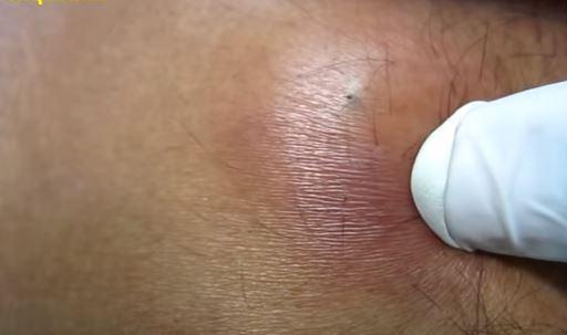 небольшая шишка на спине около позвоночника