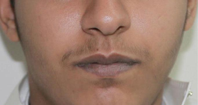 blue lips a sign of what disease