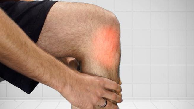 лигаментоз крестовидных связок коленного сустава