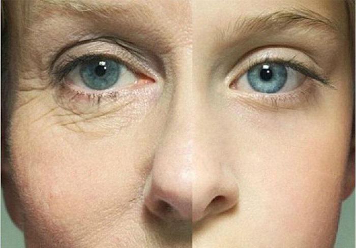 Гепариновая мазь от мешков под глазами отзывы