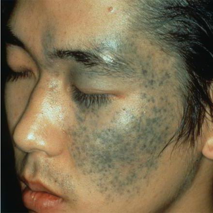 mongoloid spot
