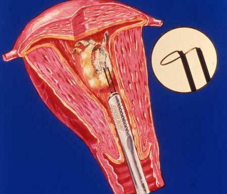Гиперплазия эндометрия при климаксе выскабливание отзывы