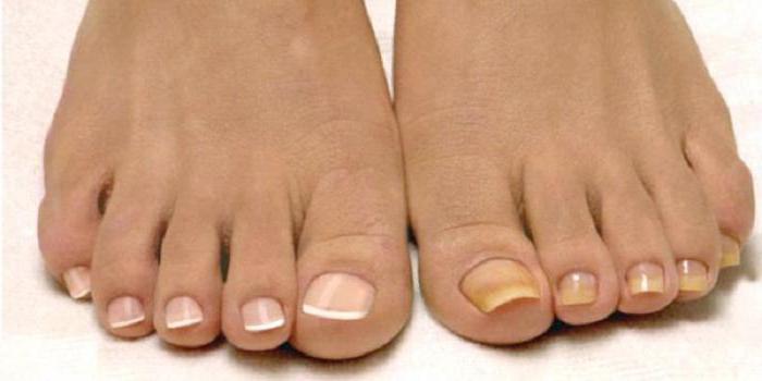 Как лечить грибок ногтей нитрофунгином