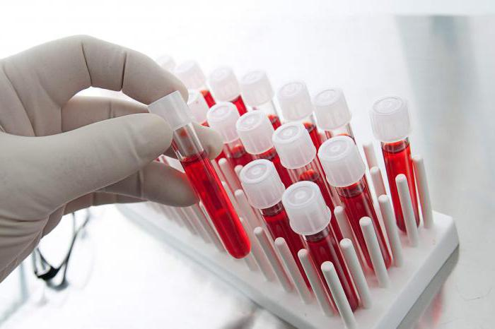 Что такое анализ крови на