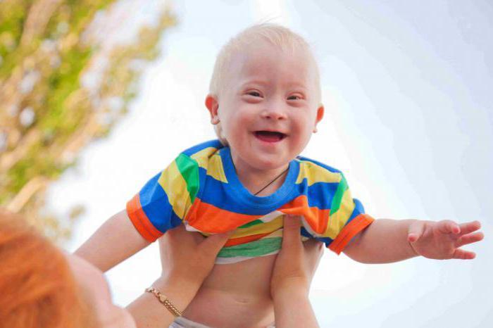 почему рождаются дети с синдромом дауна причины