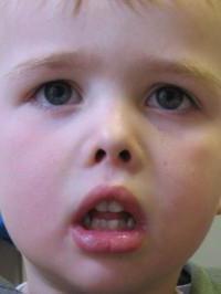 иов малыш при аденоидах как принимать отзывы