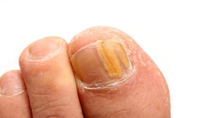 Как размягчить и удалить ноготь пораженный грибком