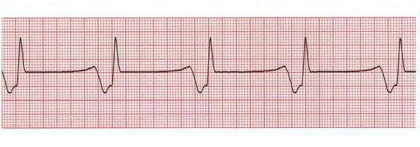 аллапинин отзывы кардиологов цена