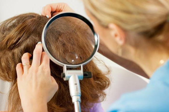 paronitis lice reviews