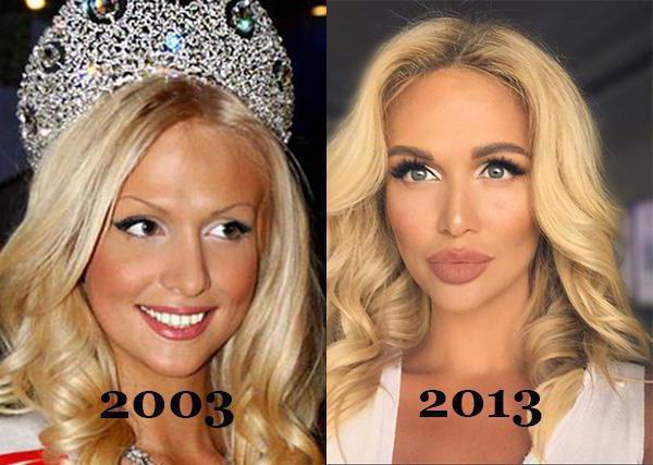 Виктория лопырева пластические операции до и после