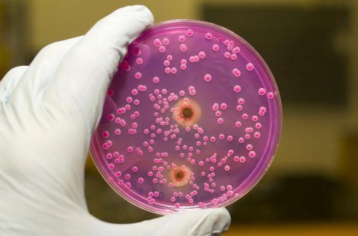 анализ мочи на посев чувствительности к антибиотикам