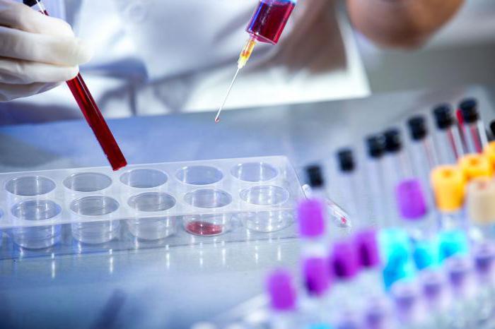 laboratory hemotest reviews