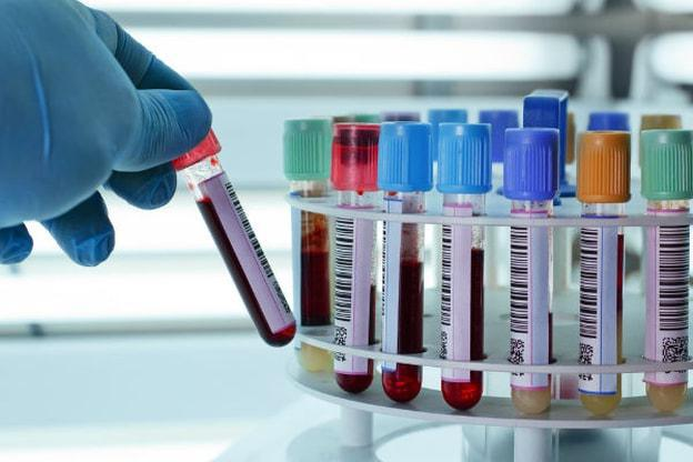 биохимический анализ крови белки