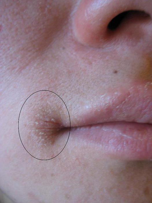 в уголках губ болячки