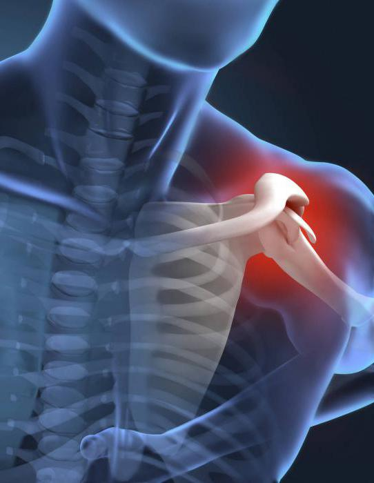 pain in the shoulder joint of the left hand causes