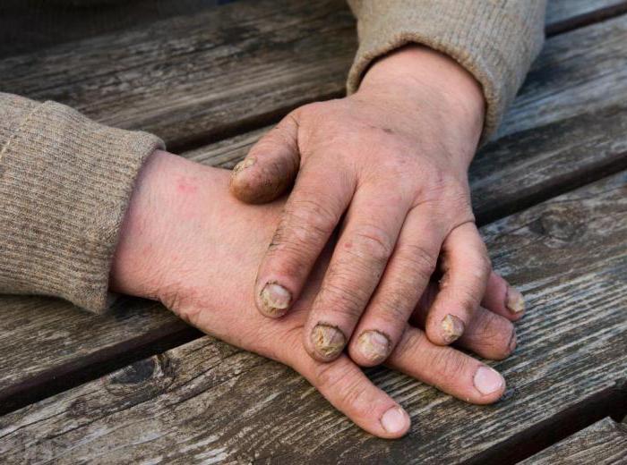 сдать анализ на грибок ногтей
