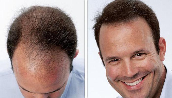 alerana shampoo for hair loss reviews price