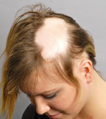 Alerana shampoo against hair loss