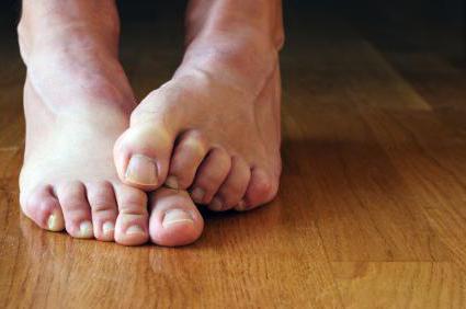 Сильно потеют и пахнут ноги что делать