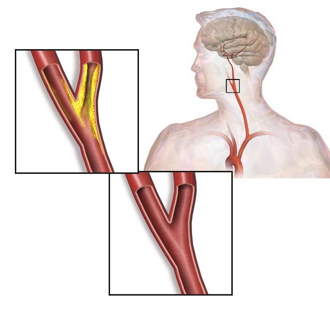 extracranial atherosclerosis