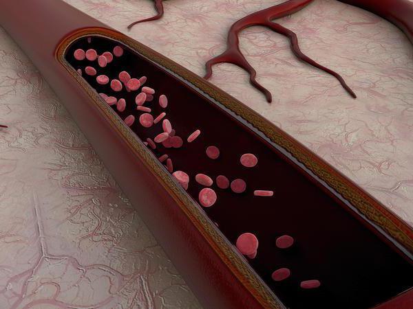 признаки гипоплазии интракраниального отдела левой позвоночной артерии