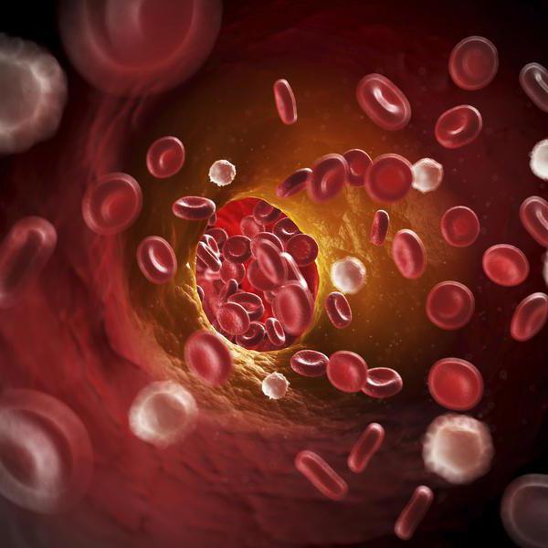 гипоплазия левой позвоночной артерии симптомы и лечение