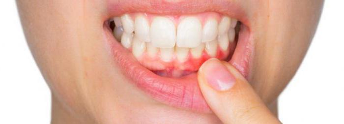 periodontal disease what is it