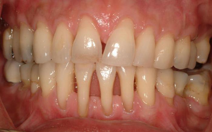 remedies for periodontal disease