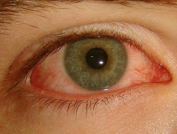 hyperemia photo