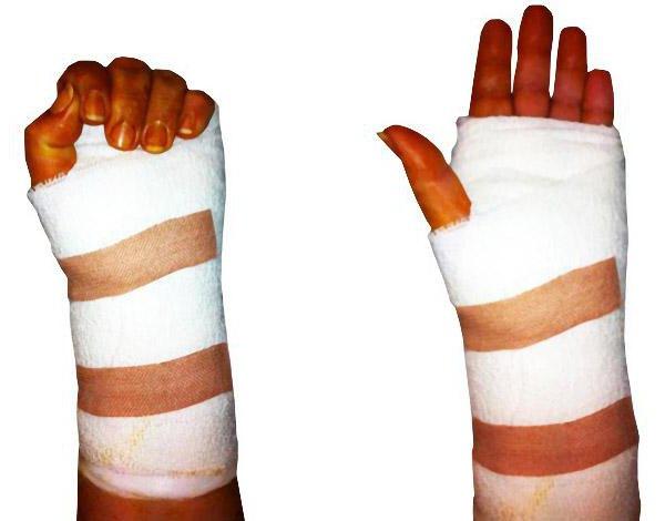 tenosynovitis ligaments