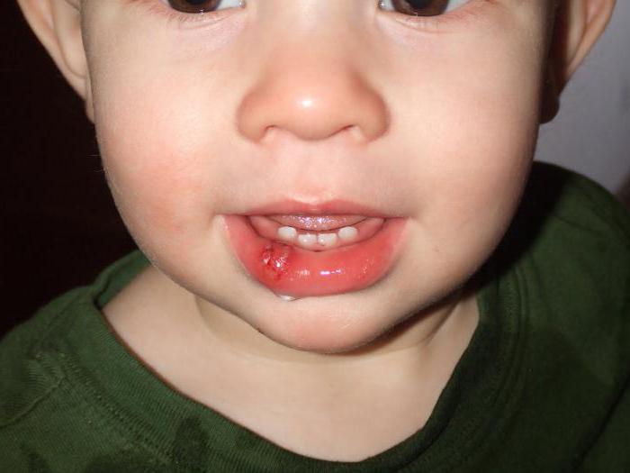 Ребенок разбил губу, что делать - первая помощь при травме