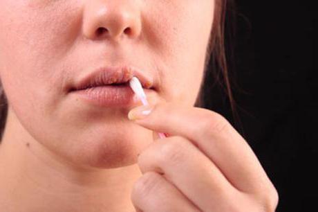 можно ли мазать простуду на губе