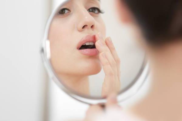 можно ли йодом мазать простуду на губе