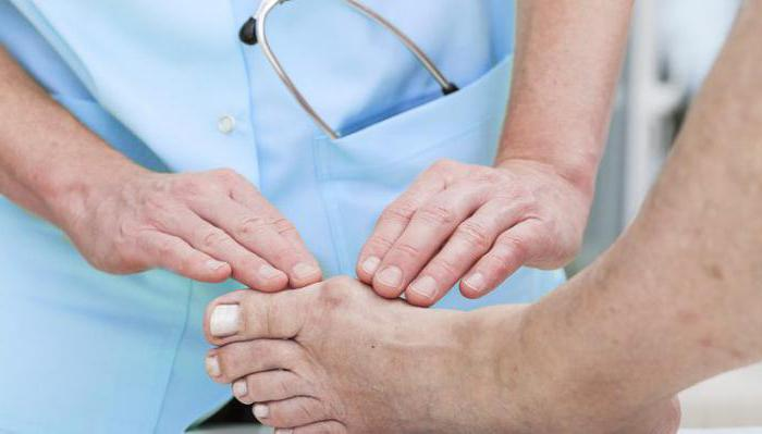 Какой врач лечит эпикондилит локтевого сустава
