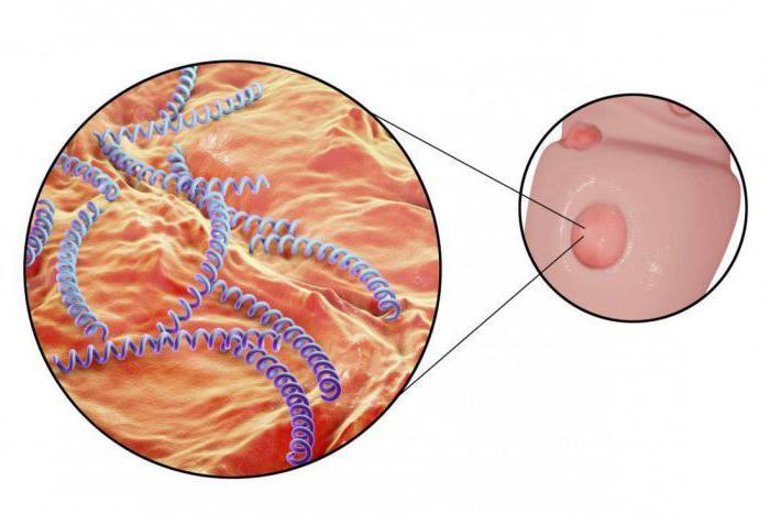 сифилис симптомы инкубационный период